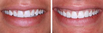 Anterior Composite Bonding w Laser Gum Sculpting