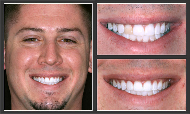 Before And After Cosmetic Dentistry Photos Daniel H